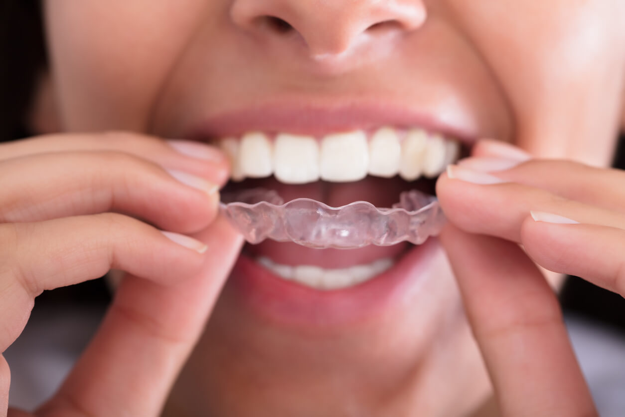 Close Up Of Woman Using An Essix Retainer