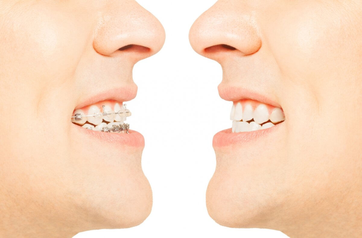 Two Images Of Man Face To Face With Braces And Invisalign