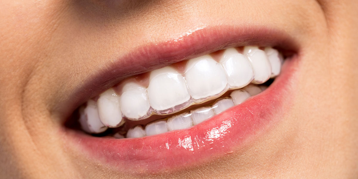 Adult Orthodontic Services | Lake Minnetonka Orthodontics