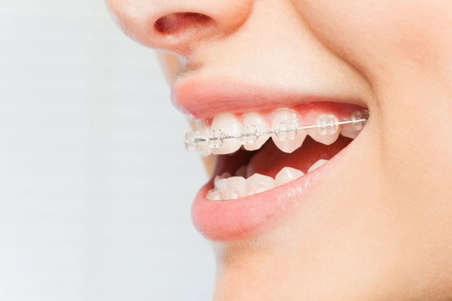 close of up woman's mouth wearing braces