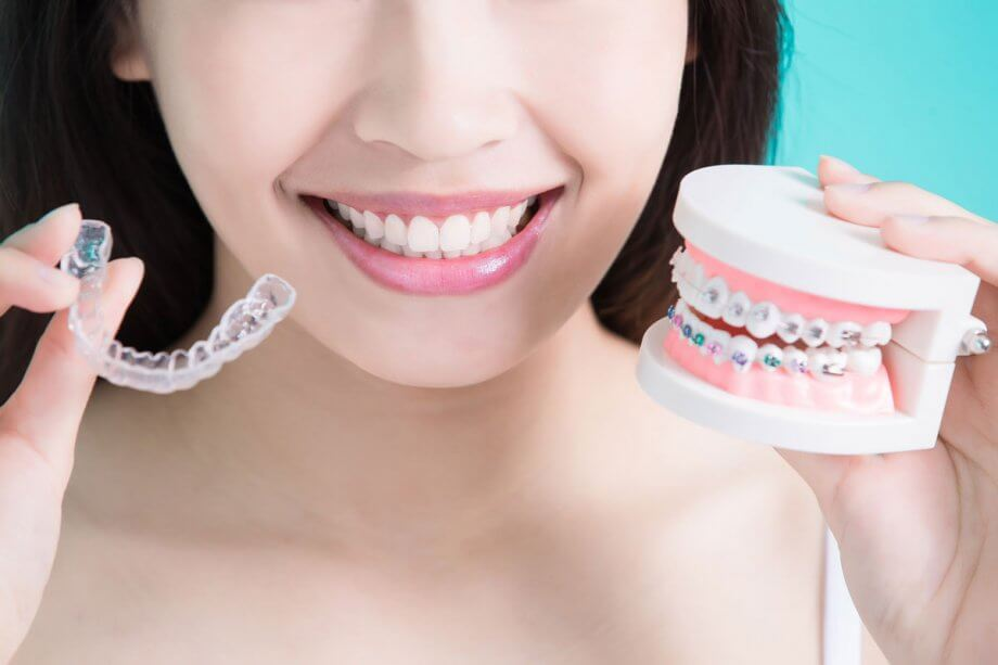 woman holding clear aligner and model with braces